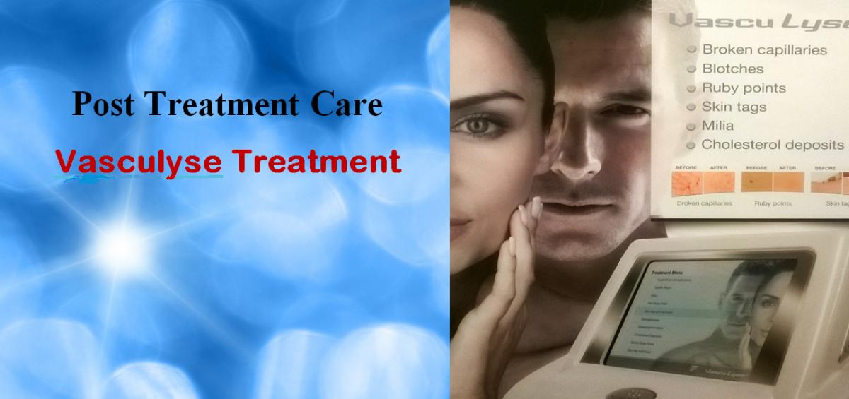 Post Treatment Care- Vasculyse